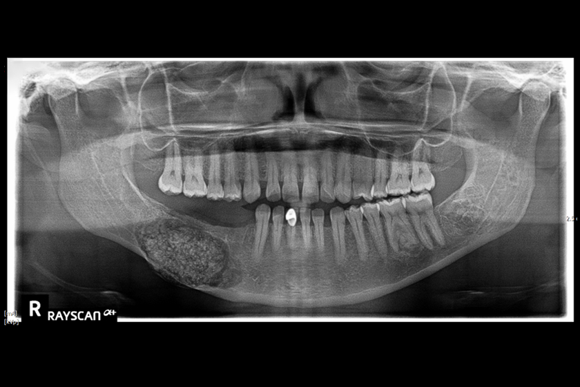 Diagnosis and Treatment of a Large Central Ossifying Fibroma of the Mandible